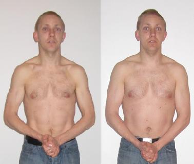 større muskler med occams protocol, før og efter